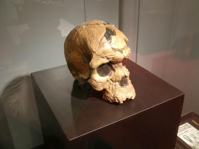 Atalarımız da beyni merak etmişler. Kasıtlı hasar izleri taşıyan kafataslarını Etiyopya ve Peru'da müzelerde görmüştüm. Kafataslarında kazınarak ya da delinerek açılmış delikler görülür. Bu delikler, pürüzsüz kenarlara sahiptir. Bu delikleri açanların amacı tam olarak bilinemiyor. Missouri Üniversitesi bilim insanları, Pakistan'ın Mehrgarh bölgesinde bulunan bir diş üzerinde yaptıkları araştırmada, dişin üzerinde ustaca açılmış kanallar bulunduğunu; bunların insan eliyle, çok ince ve özel bir alet kullanılarak açıldığını; dolayısıyla 8 bin yıl önce de diş tedavisi yapıldığını saptadılar. Ulusal Müze, Addis Ababa, Etiyopya. Fotoğraf: Füsun Kavrakoğlu