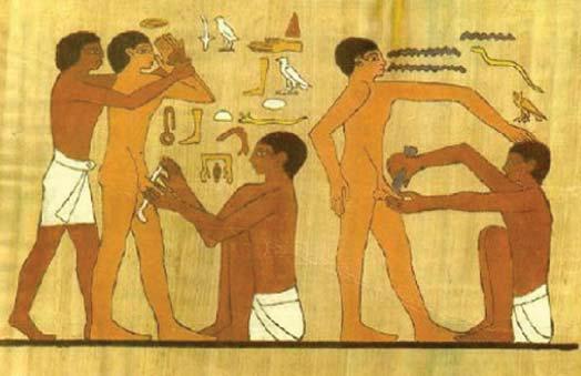 MÖ 2500'lerde Mısır'da sünnet geleneği olduğu düşünülüyor. Fotoğraf: Ekstrem Bilgi